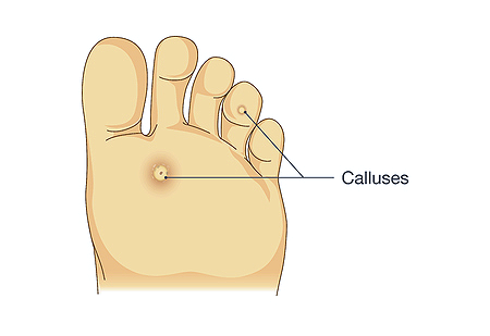 Callus Cure Foot Repair